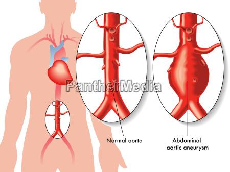 cuore arteria