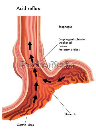 illustrazione medica degli effetti del reflusso