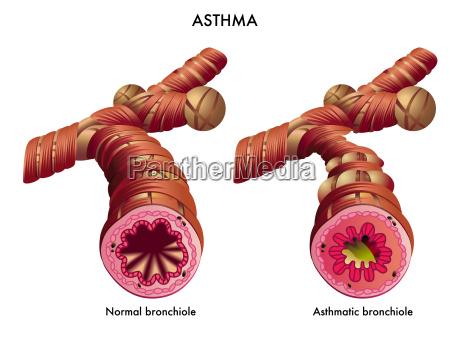asma affanno