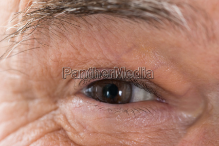senior mans eye