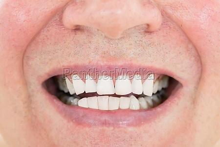 senior man showing his teeth