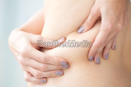 lokaliseret fedt i kvinde tilbage