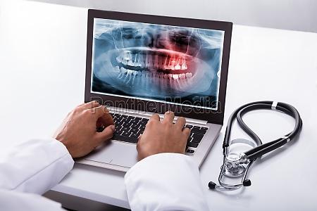 dentista digitando sul computer portatile con