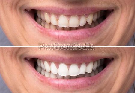 persona, denti, prima, e, dopo, lo - 23597010