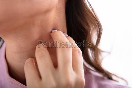 donna che graffia il suo collo